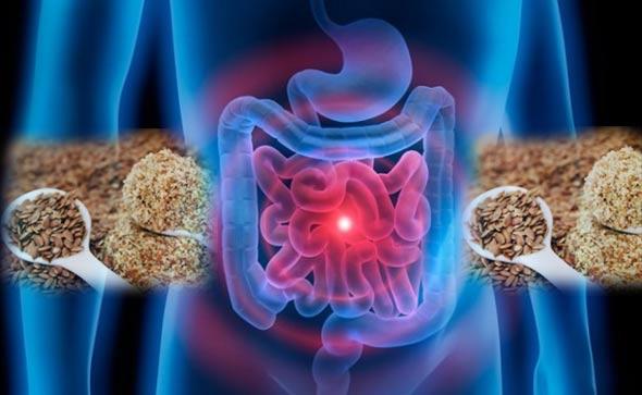 crijeva-lan-lijecenje