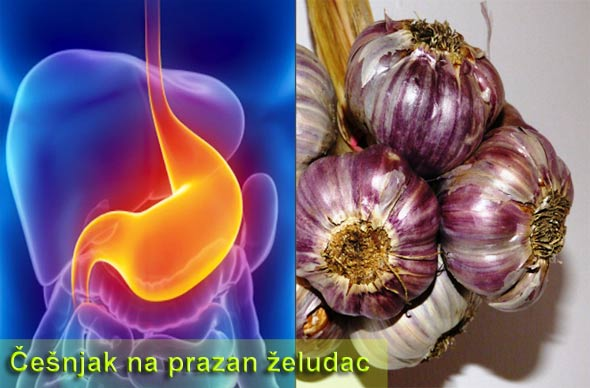 cesnjak-stomak