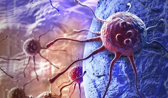 rak-karcinom-stanica