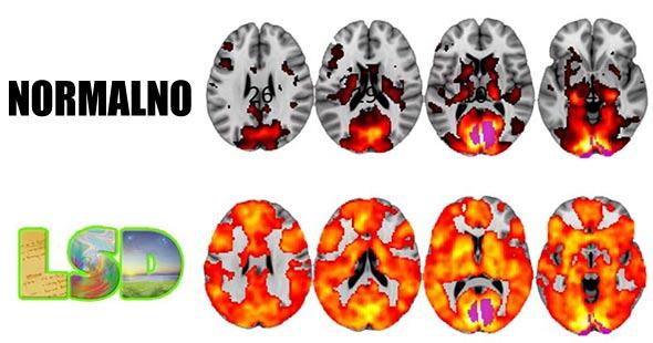 lsd-mozak