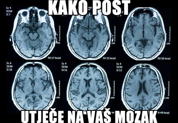 mozak-sken